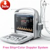 Human Color Doppler System/2D High-Quality Color D Manufacturer